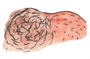 uitgebreide prostaatkanker